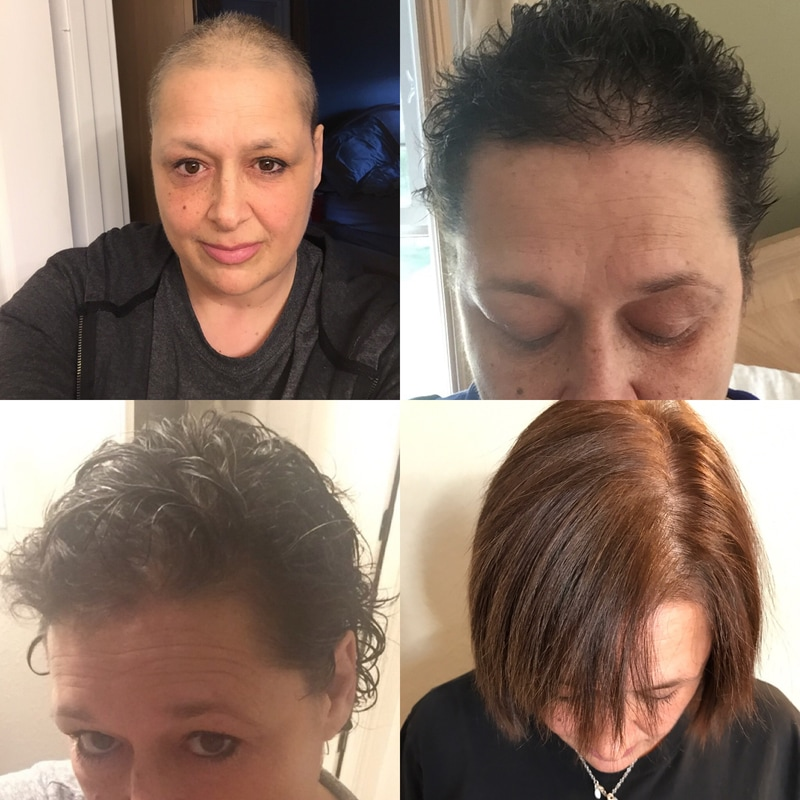 Hair Extensions After Chemotherapy Post Chemo Hair Loss Solutions
